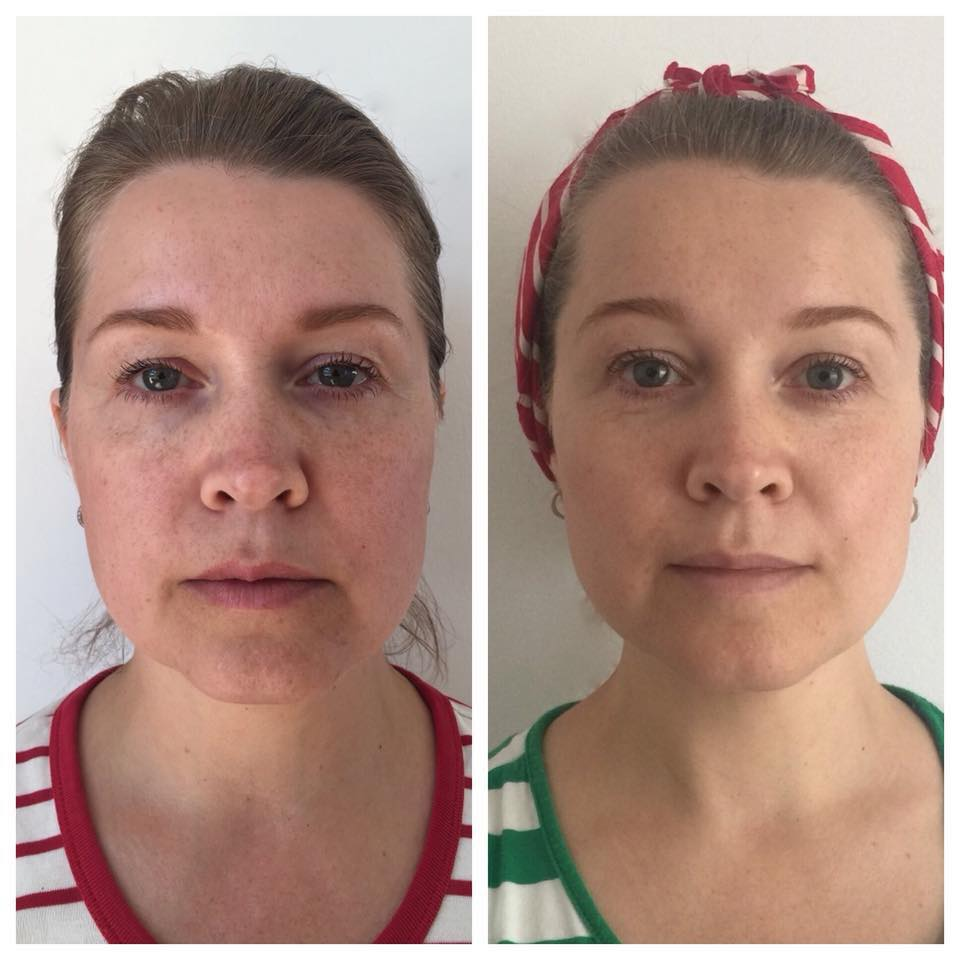 What is face yoga - FACE YOGA WORLD